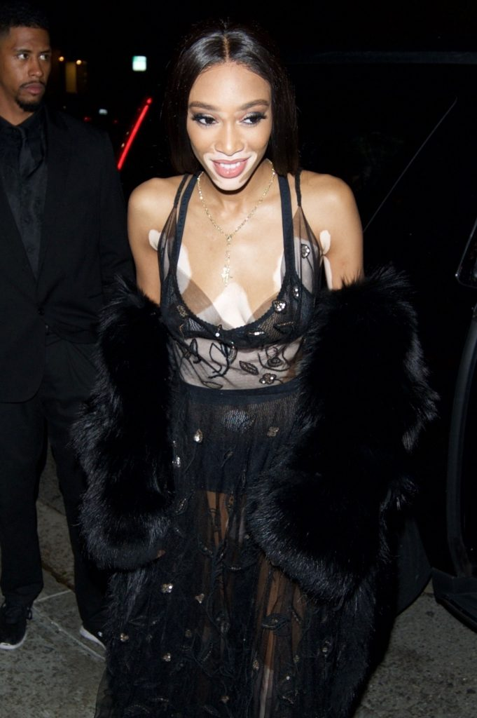 Winnie Harlow Flashes Her Tits In Public (18 Photos)